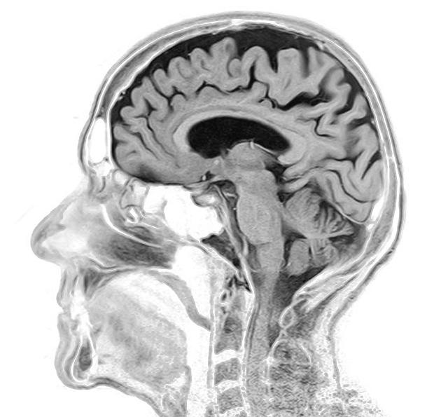 Smegenų MRT vaizdas